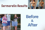 Sermorelin Before and After Results Changes Reported by Patients