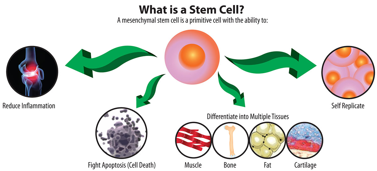 How Much Does Stem Cell Therapy Cost Essence of Stem Cell