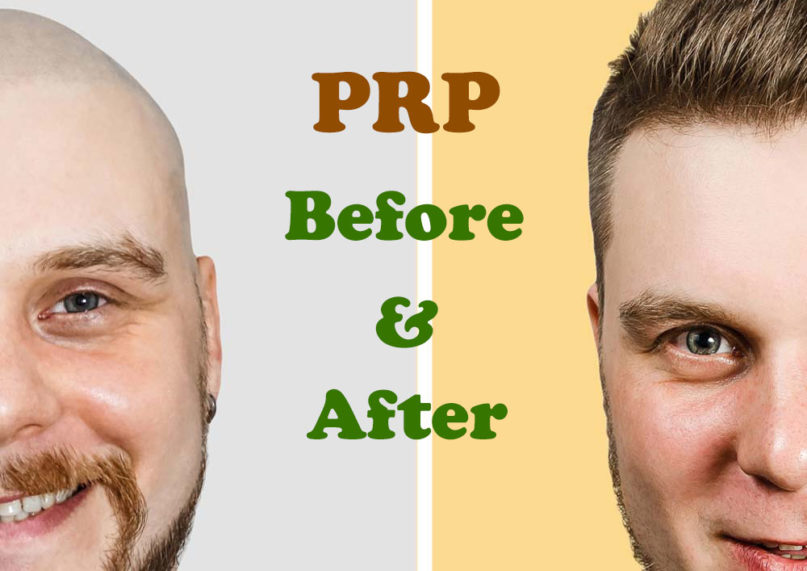 PRP Before and After Safe and Natural Results