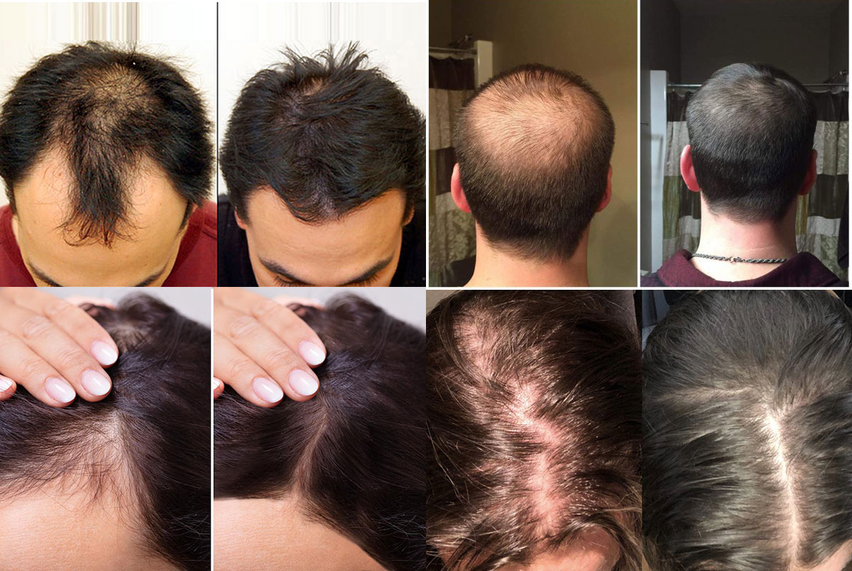 PRP Injection Hair Results Before and After