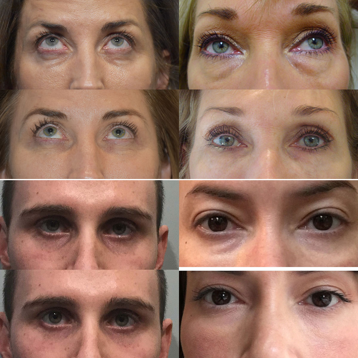 PRP Injection Under Eyes Before and After
